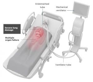A person having support from mechanical ventilation due to severe lung damage or multiple organ failure